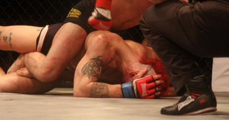 MMA: Ra oai gio mat chiu don, an 1 da guc luon - Anh 1