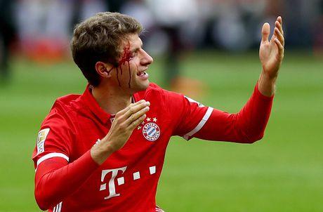 Mueller do mau, Bayern hoa tran thu hai lien tiep - Anh 14