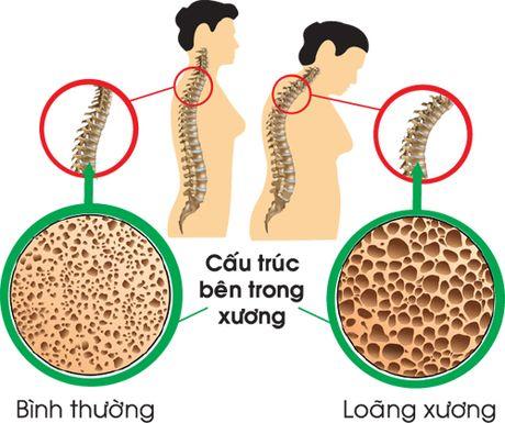 Nuoc uong khong an toan co the dan den loang xuong - Anh 1
