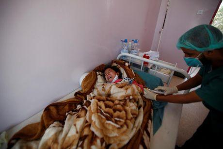 Canh tan hoang o dat nuoc Yemen ben bo vuc sup do - Anh 5