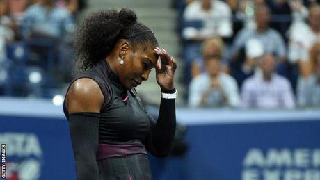 Serena tiep tuc bo giai vi chan thuong - Anh 1