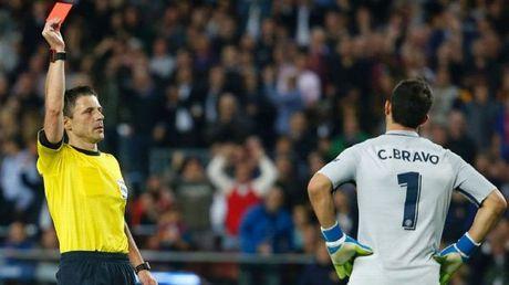 Thua be mat o Nou Camp, Pep Guardiola muon Bravo 'do dan' - Anh 2