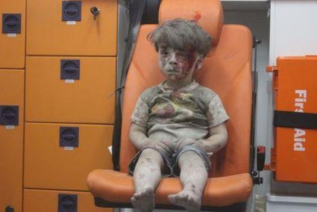 Tong thong Assad chinh thuc tuyen bo buc anh cau be Syria la dan dung - Anh 1