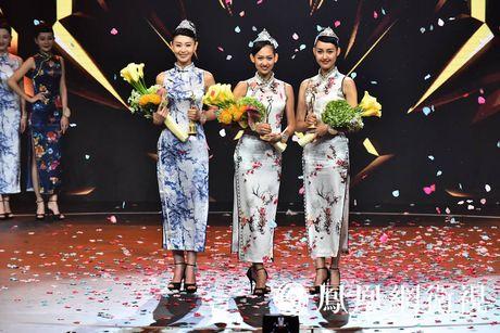 Nhan sac tan Hoa hau Toan cau Trung Quoc bi che tam thuong - Anh 1