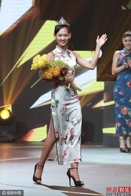 Nhan sac tan Hoa hau Toan cau Trung Quoc bi che tam thuong - Anh 4