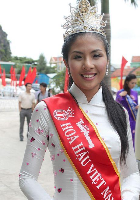 Lo khuyet diem bat ngo tren co the hoa - a hau Viet - Anh 4