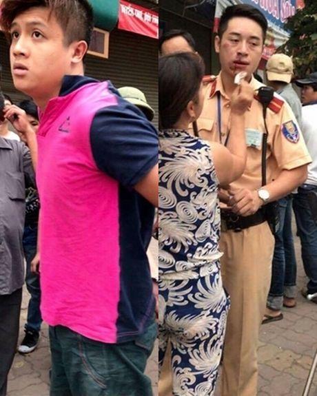 Khoi to nam thanh nien dam gay rang CSGT Ha Noi - Anh 1