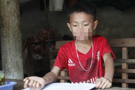 Khong lam duoc bai, nam sinh lop 4 bi thay danh nhap vien - Anh 1