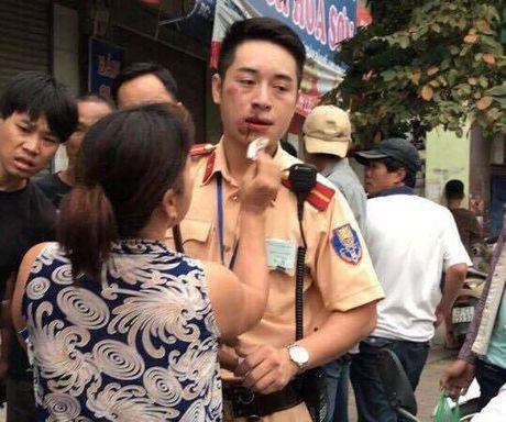 Ha Noi: Khoi to thanh nien 9X dam CSGT gay hai rang cua - Anh 2