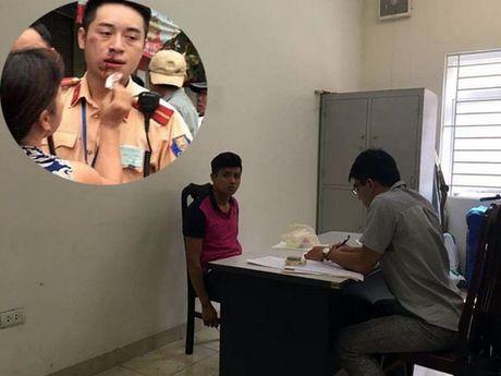 Khoi to, tam giam doi tuong danh gay rang trung uy canh sat giao thong Ha Noi - Anh 1