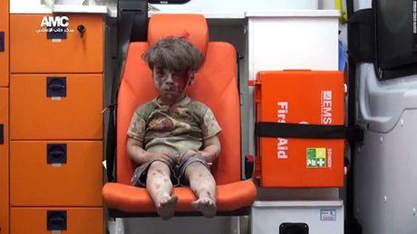 Tre em o Aleppo: 'Tha chet con hon tiep tuc song nhu the nay' - Anh 2