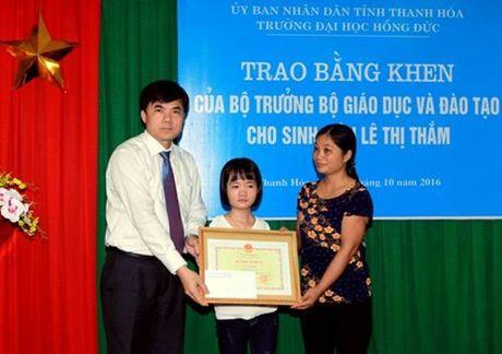 Bo truong Bo GD&DT tang bang khen cho nu sinh khong co tay - Anh 1