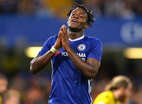 Conte muon Batshuayi 'ha be' Costa - Anh 1