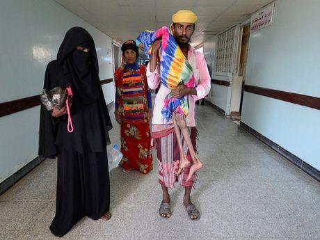 Hinh anh tan khoc trong cuoc chien o Yemen - Anh 1