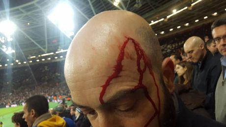 West Ham chien thang Chelsea trong tran cau nhuom mau bao luc - Anh 10