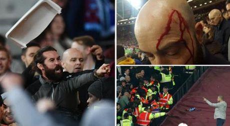 West Ham chien thang Chelsea trong tran cau nhuom mau bao luc - Anh 1
