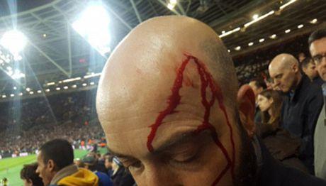 West Ham 2-1 Chelsea: Chien thang cua West Ham bi che mo boi canh CDV danh nhau - Anh 4