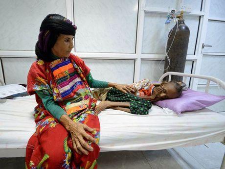 Hang trieu nguoi dan Yemen truoc nguy co chet doi - Anh 1