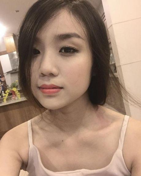 Bi don yeu Mi-A nhung Hoai Lam lan dau cong khai nguoi yeu khong ai ngo - Anh 2