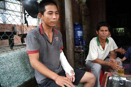 Gia Lai: Chan thuong so nao sau khi roi tru so cong an xa - Anh 1