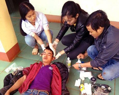 Thanh nien trom cho bi dan lang danh ngat xiu - Anh 1