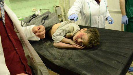 Phien quan phong ten lua tan cong khu dan cu tay Aleppo - Anh 1