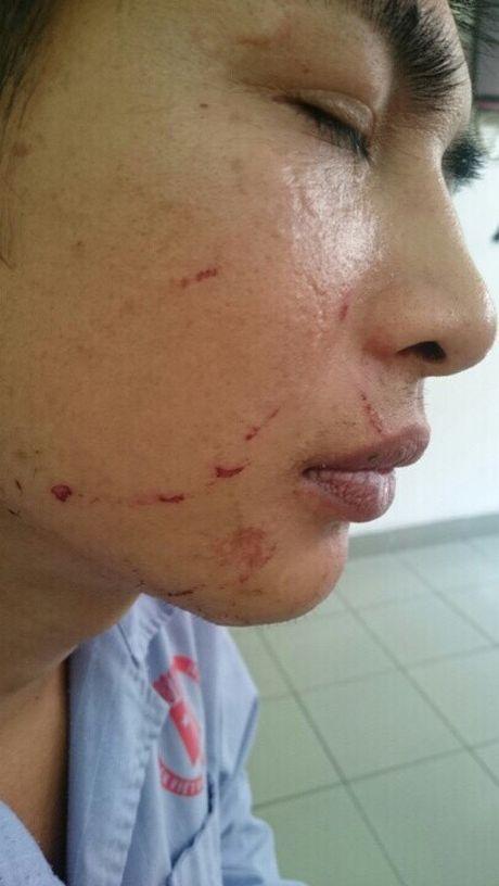 Ba cong dan bi danh dap da man o Quang Ninh: Vi sao ke thu ac van nhon nho ngoai vong phap luat? - Anh 3
