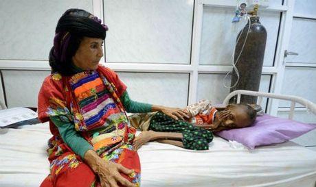 Hang trieu nguoi Yemen nguy co chet doi - Anh 1