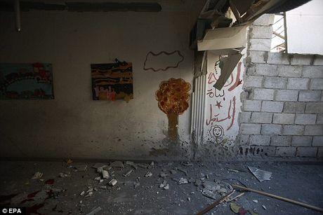 Xot xa cac em be Syria bi thuong khi truong mam non bi danh bom - Anh 13