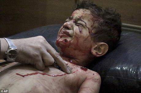 Xot xa cac em be Syria bi thuong khi truong mam non bi danh bom - Anh 1