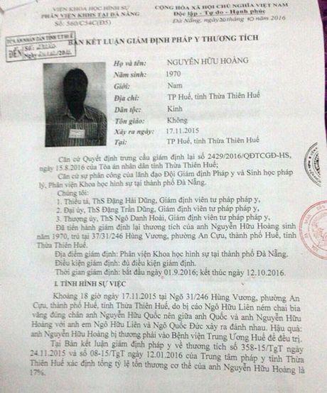 TAND Thua Thien Hue ap dung sai ket qua giam dinh? - Anh 1