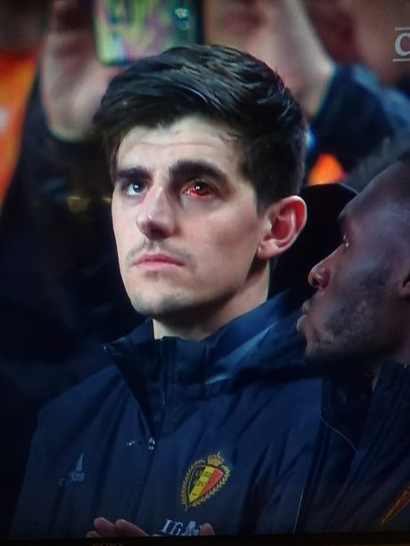 Mat trai xuat huyet, Courtois khien Chelsea lo au - Anh 3