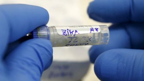 Them 5 truong hop nhiem virus Zika o TP HCM - Anh 1