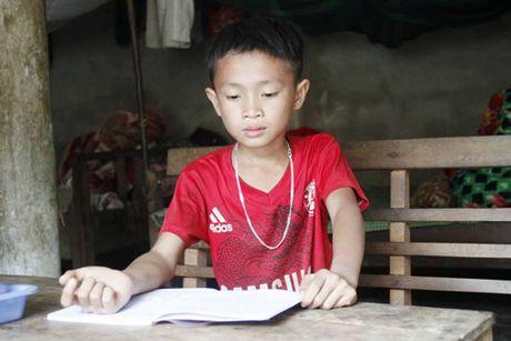 Ky luat thay giao danh hoc sinh bi thuong vi khong lam duoc bai - Anh 1