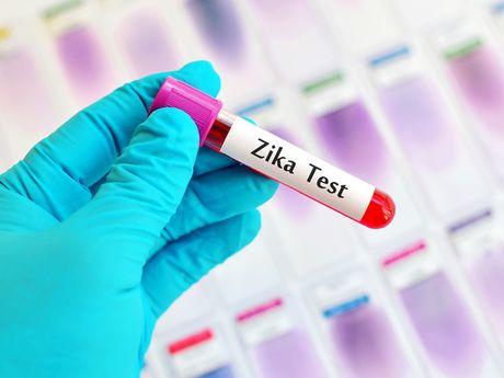 Ba Ria - Vung Tau: Phat hien ca nhiem vi rut Zika dau tien - Anh 1