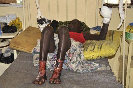 Anh Boko Haram bat coc nu sinh va de tre em truoc nguy co chet doi - Anh 9