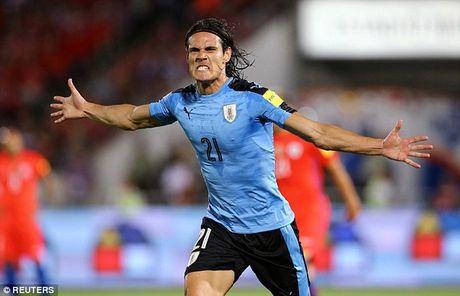 Chile 3-1 Uruguay: Alexis Sanchez toa sang, Arsenal bat an - Anh 2
