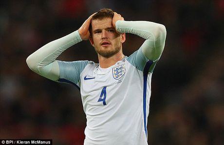 Cao buoc Herrera danh nguoi, sao Tottenham 'hen gap lai' o tran gap MU - Anh 1