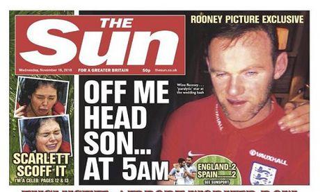 Wayne Rooney lo hinh anh 'kho do' sau khi uong ruou ca dem - Anh 1