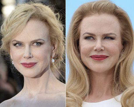 Phat hoang voi mat cung do, bien dang cua sao Hollywood vi Botox - Anh 11