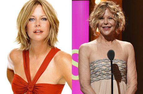 Phat hoang voi mat cung do, bien dang cua sao Hollywood vi Botox - Anh 12