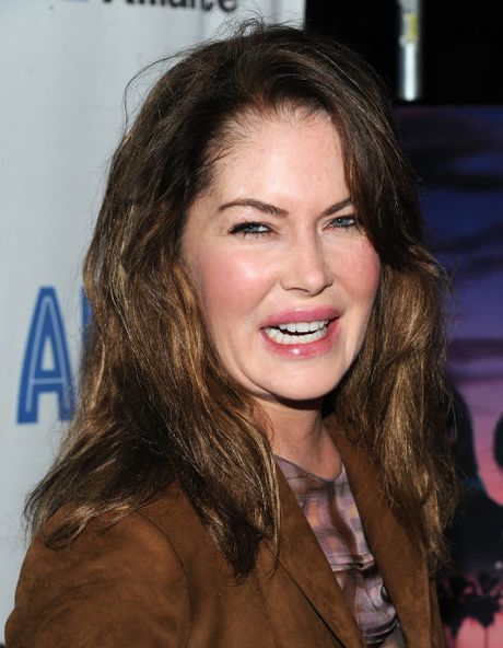 Phat hoang voi mat cung do, bien dang cua sao Hollywood vi Botox - Anh 3