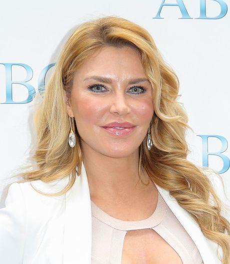 Phat hoang voi mat cung do, bien dang cua sao Hollywood vi Botox - Anh 4