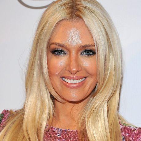 Phat hoang voi mat cung do, bien dang cua sao Hollywood vi Botox - Anh 6