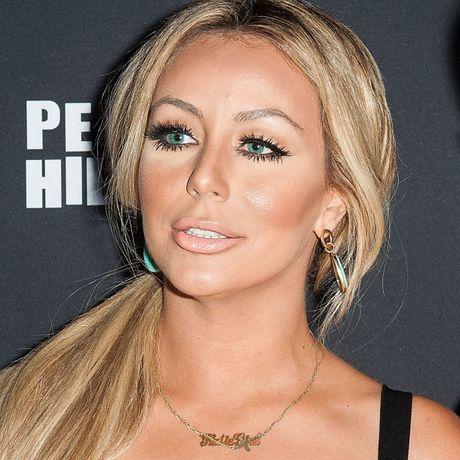 Phat hoang voi mat cung do, bien dang cua sao Hollywood vi Botox - Anh 8