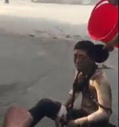 Ha Noi: No bot dien nguoi dan ong chay nhu ngon duoc song - Anh 1