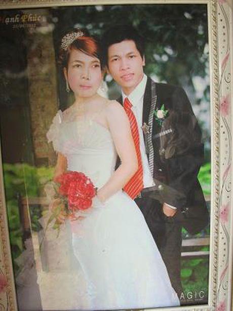 BS. Nguyen Quoc Bao: Khac tinh cua nhung khoi u quai - Anh 9