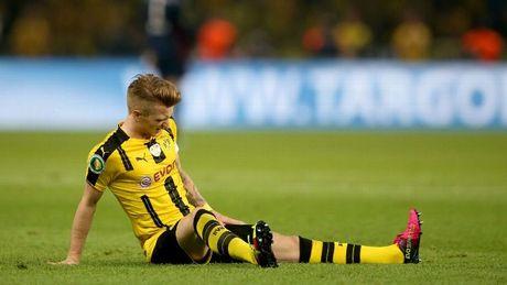 Dortmund nhan tin soc truoc tran doi dau Bayern Munich - Anh 1