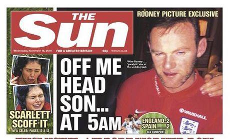 Rooney sap bi tuoc bang doi truong vi say xin - Anh 1