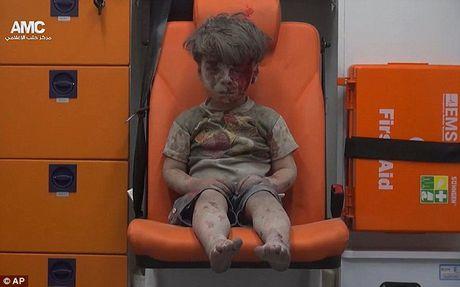 Tong thong Obama gap cau be muon giup do 'em be Syria' - Anh 2